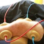 elektrotherapie2